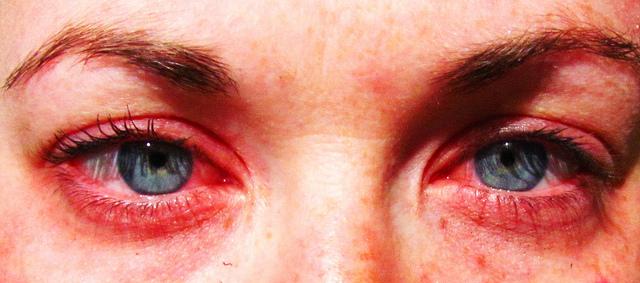 Alergia al maquillaje